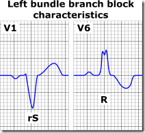 Left_bundle_branch_block_ECG_characteristics